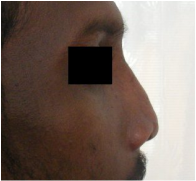 Postoperative image after open rhinoplasty with primary bone grafting