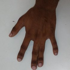 Simple syndactyly involving the soft tissues