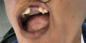 After fistula correction with a tongue flap