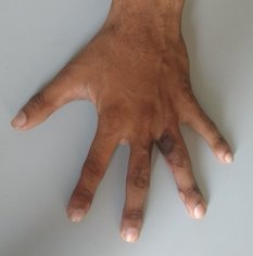 Syndactyly treated with local flaps and full thickness skin grafts