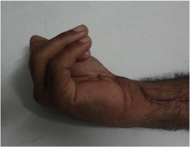 Preoperative: Impaired flexion due to the adhesions surrounding the long flexors