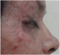 Contracture release of upper eyelid and coverage with full thickness skin graft