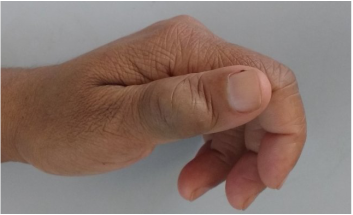 Vascular tumor of the the thumb