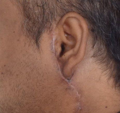 Keloid scar around ear after plastic surgery