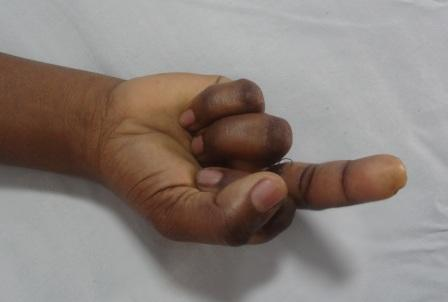 Transection of the long flexors of the middle finger