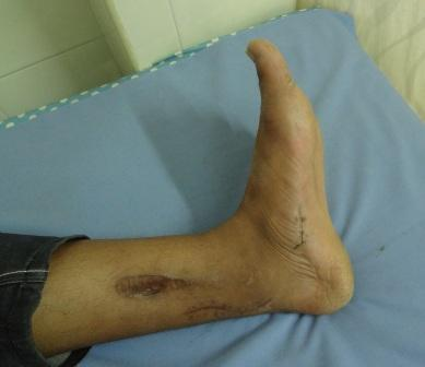 After release of the flexor of the big toe