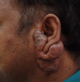 Keloid scar around ear before plastic surgery