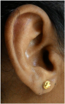 after repair of ear lobe with plastic surgery