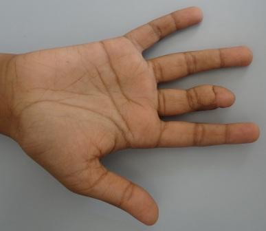 Straightening of the digit which allows improved fist making following release of the contracture.