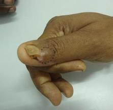Recurrent glomus tumor of thumb