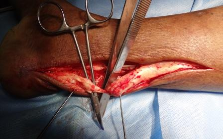 Chronic tendoachilles rupture with the instrument showing the tendon gap