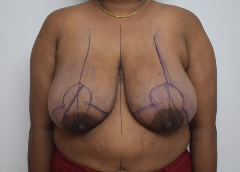Before breast reduction (Frontal)