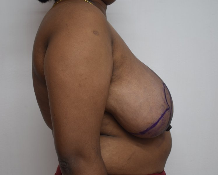 Before breast reduction (Lateral)