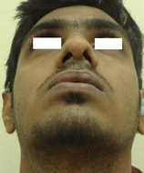 Early postoperative view with improved size of nostrils and functional improvement