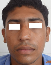 Improved balance with nasolabial flap cover and dermabrasion