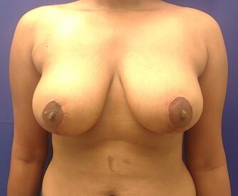 After breast reduction (medial pedicle technique)