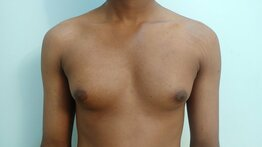 Asymmetry due to the difference in the breast tissue.