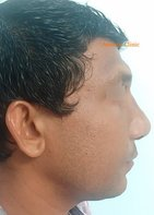 After: Secondary rhinoplasty with septoplasty, tip-plasty, dorsal augmentation and multiple osteotomies