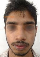 After: Rhinoplasty with asymmetric osteotomies and cartilage grafts