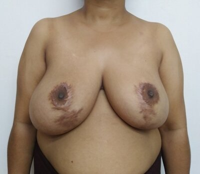 Before secondary breast reduction