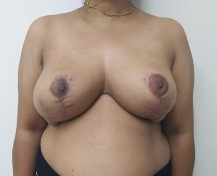After secondary breast reduction (2 months post-op)